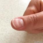 親指の爪のへこみ!原因は栄養不足や病気なの?